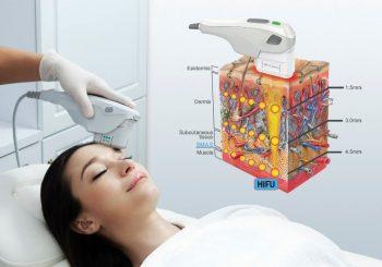 Edukacija o trajnom odstranjivanju dlačica pomoću eLite IPL+ RF i lasera
